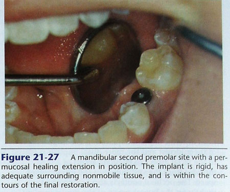 phuc-hinh-implant