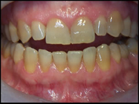 tetracyclineteeth