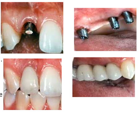 Dental_Implant-1