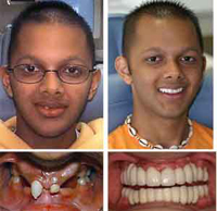 implant_before_after2